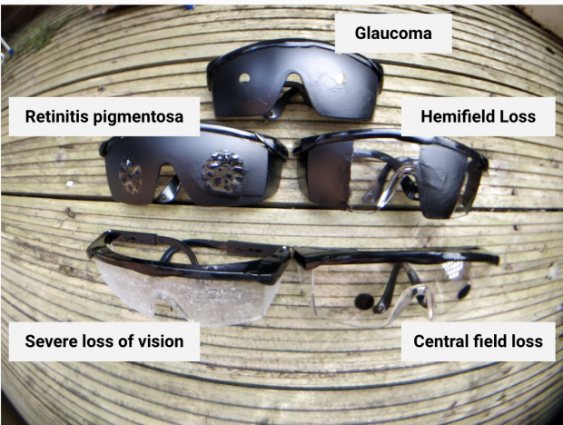 5 pairs of simulation glasses for Glaucoma, Retinitis pigmentosa, hemifield loss, central field loss, and severe loss of vision